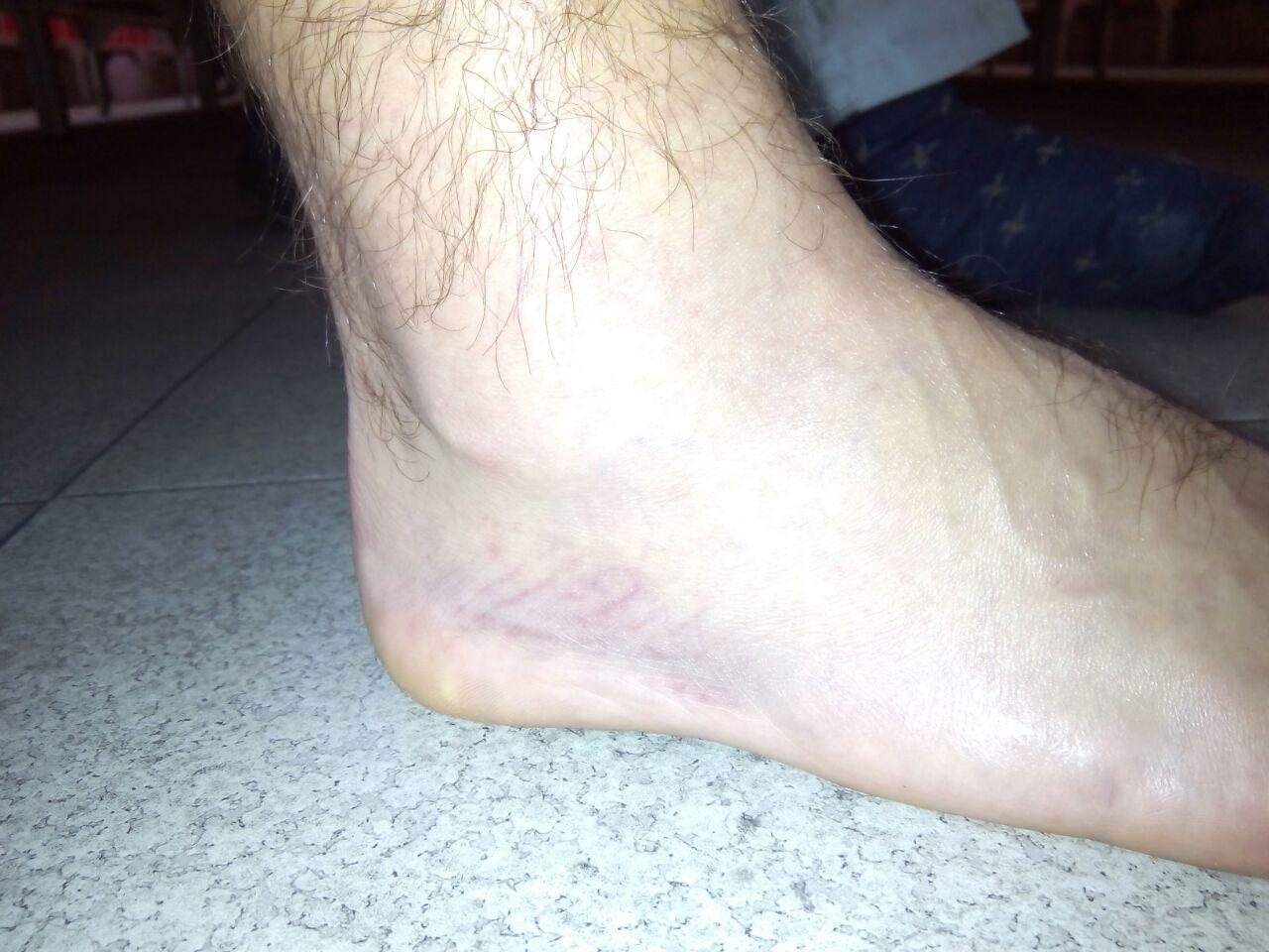 durerea articulară la picioarele mele s-a așezat)